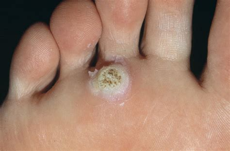 cure wart infection picture 14