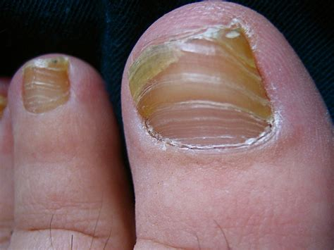 cure for yellow toe nail fungus picture 9