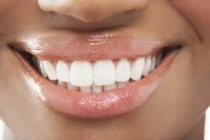 anyone tried perfectly white teeth whitening picture 5
