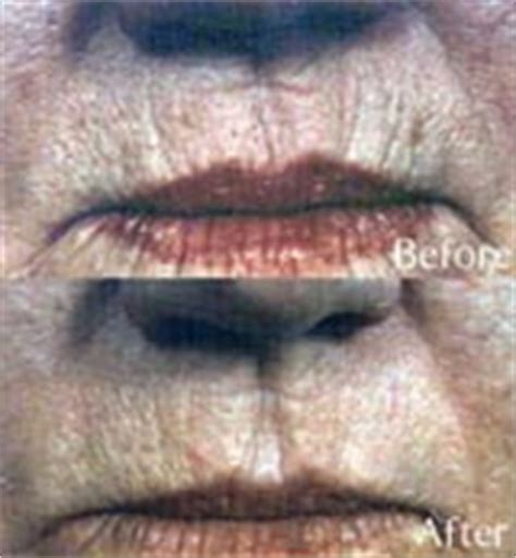 skin needling for plump lips picture 13
