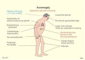 excessive secretion of growth hormone causes picture 1