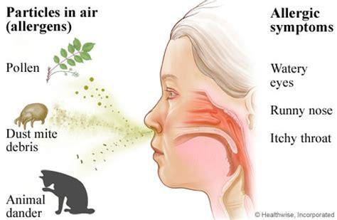 ano ang sanhi ng pagkakaroon ng allergy rhenites picture 5