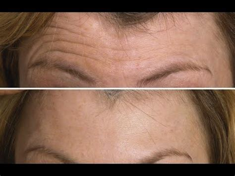 can coconut oil reverse wrinkles picture 7