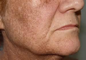 ingestable skin pigment picture 13
