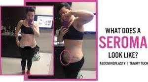 seroma after breast augmentation picture 14