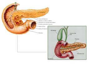 do probiotics aggravate pancreatitis picture 7