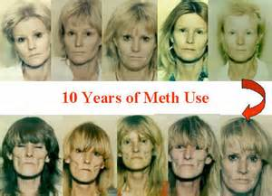 meth and aging picture 5
