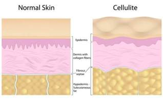 can cellulite creams cause muscle weakness picture 10