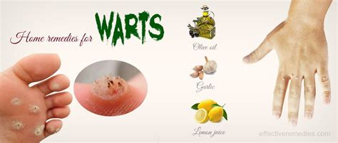 can anomex cure warts? picture 1