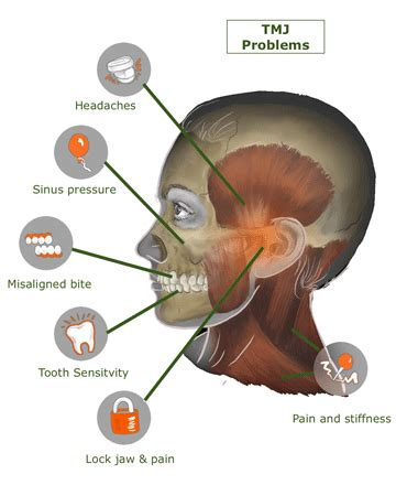 jaw joint pain picture 9
