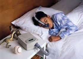 information on sleep apnia picture 7