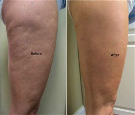 cellulite and laser picture 3
