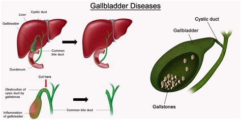 gal bladder picture 9