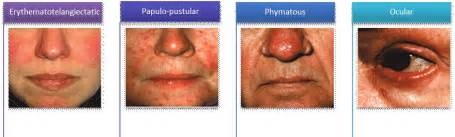 rosacea stage 4 picture 1