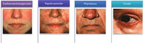 rosacea stage 4 picture 3