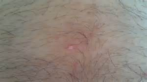 pimple in my groin area herpes picture 1