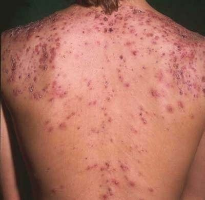 how to get rid of back acne picture 5