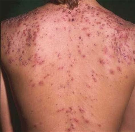 get rid of acne scars picture 9