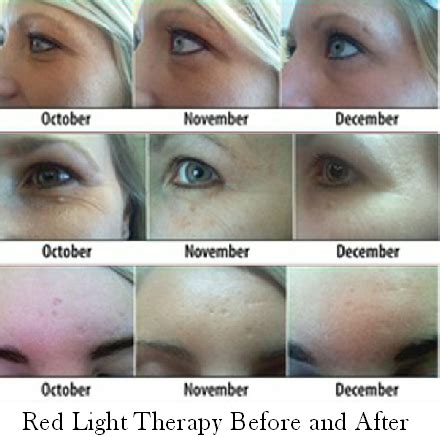 led skin therapy picture 1
