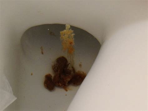 infected bowels picture 2