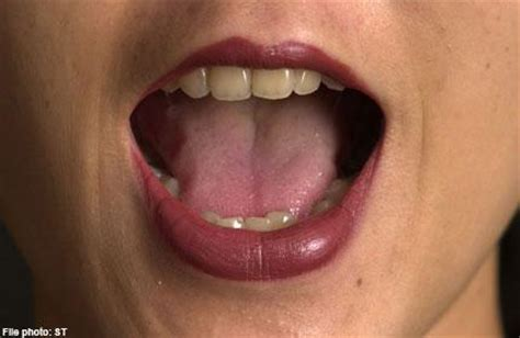 pictures of gential warts on mouth picture 4