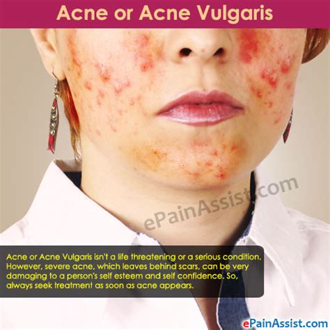acne vulgaris causes, diagnosis & treatments - clinical picture 9