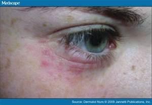 detox rash on infants face picture 14