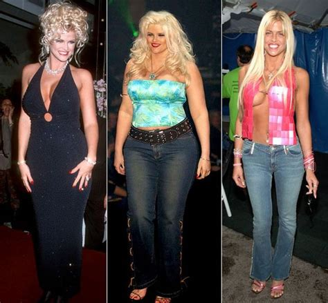 anna nicole's weight loss picture 1