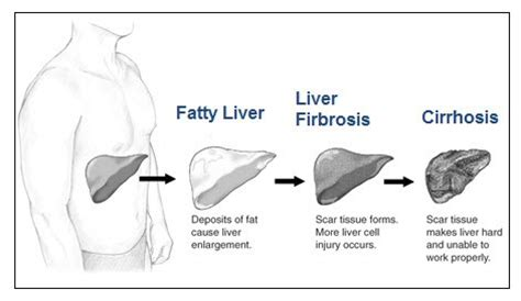 percentage of alcoholics with cirrhosis liver picture 11
