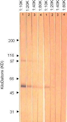 western blot herpes picture 11
