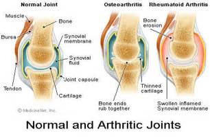 treatment for early arthritis of the knee joint picture 1