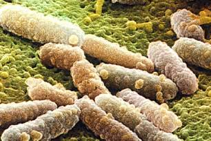herbal prention of e coli bacteria picture 3