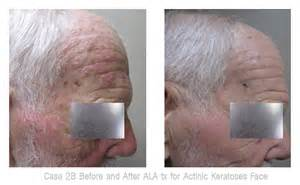 ala treatment for the skin picture 9