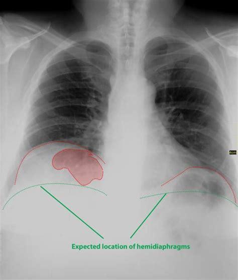 gas pain colon picture 6
