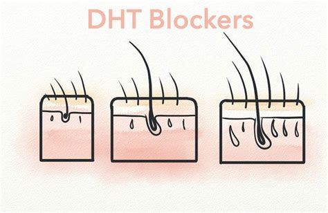 Can bacopa block dht picture 7