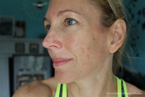 menopausal acne picture 1