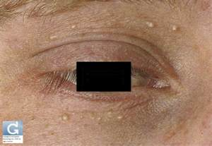 skin conditions around eyes picture 11