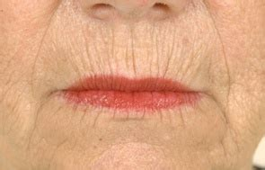 lines around lips picture 14