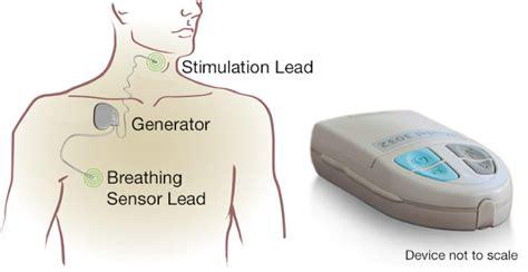doctors in southern california that treat sleep apnea picture 1