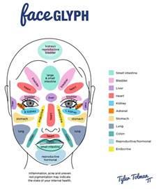 rosacea pimples picture 6