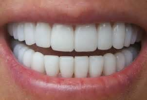 perfect teeth picture 1