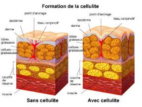 cellulite y picture 3