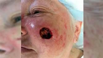 boils & pimples picture 3