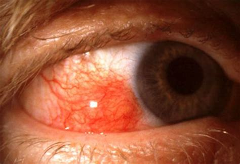 herpes of the eye picture 5