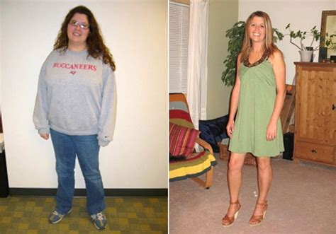 weight loss surgery and sugar picture 3