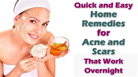 at home acne treatment picture 14