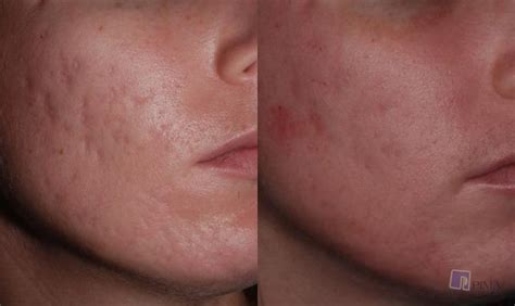 acne scarring pictures picture 9