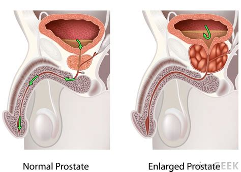 cure for prostatitis picture 11