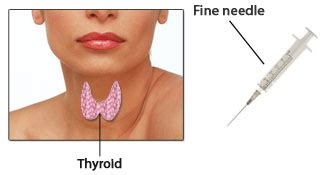 aspirate growth on thyroid picture 11