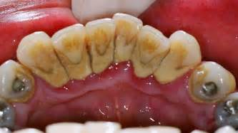 cream of tartar to whiten teeth picture 6